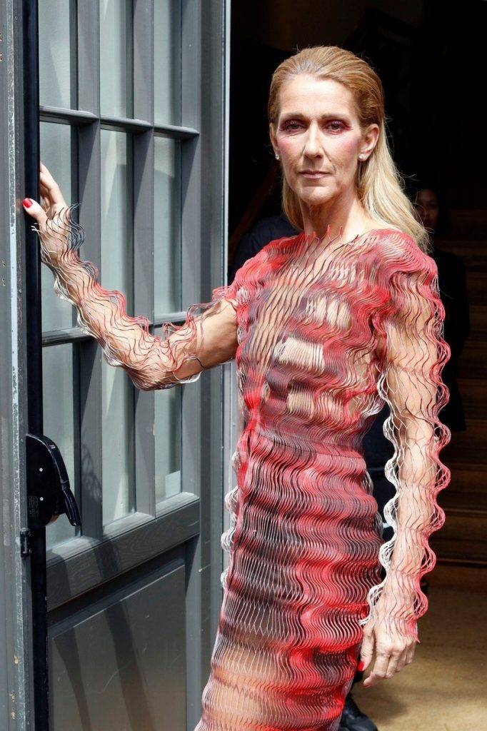 shujšana Celine Dion