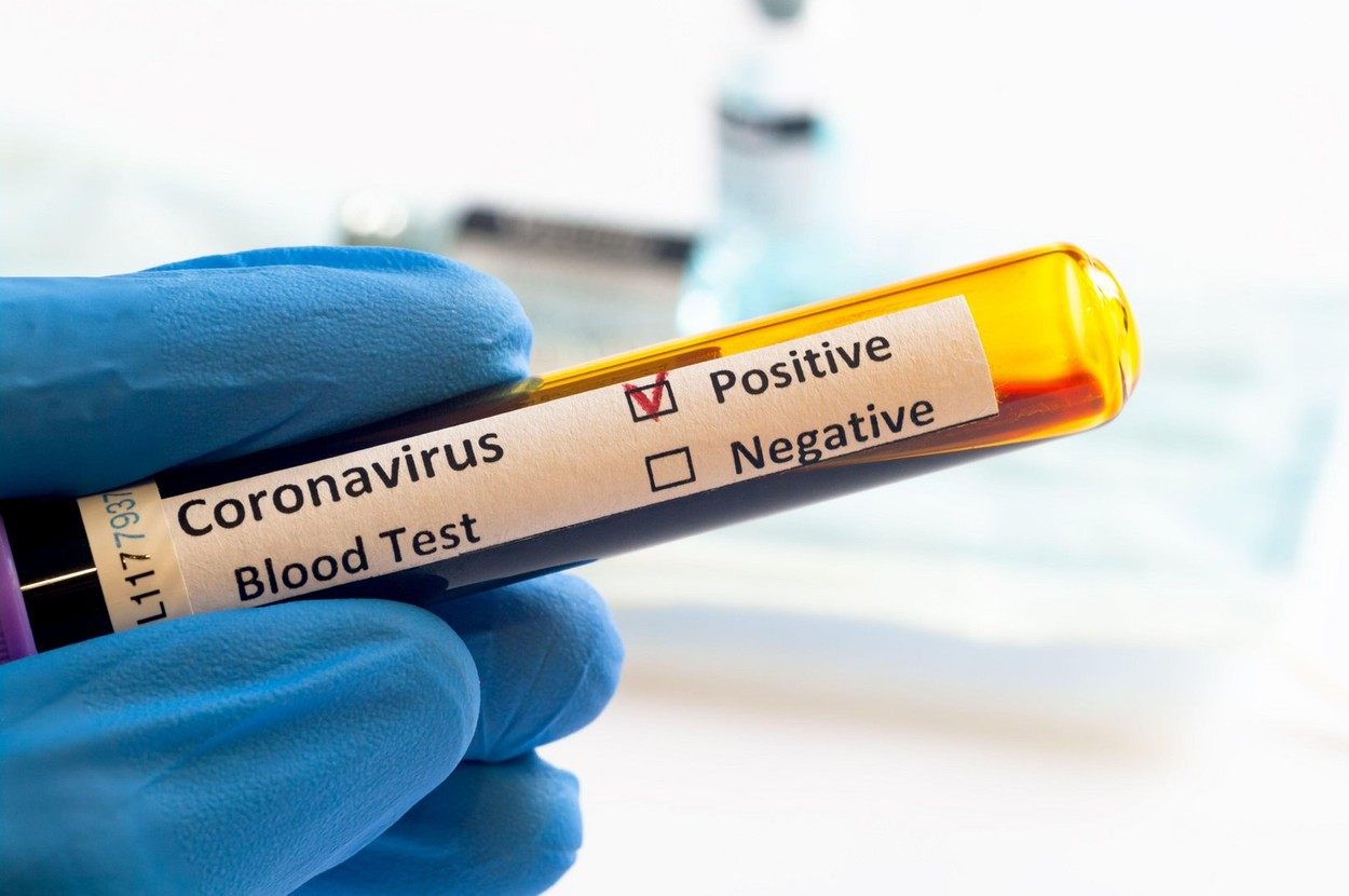 koronavirus umrljivost v sloveniji