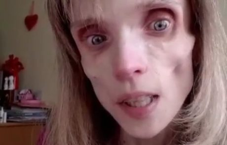 """Stara je 26 let, tehta le 17 kg, zdravnik pa ji je rekel: """"Lahko igraš živega mrtveca"""""""