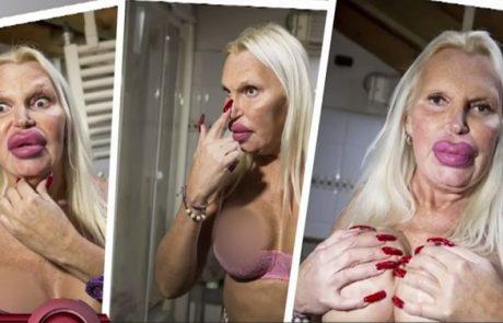 """""""Bil sem ujet v svojem telesu"""": Za 'popolno žensko telo' zapravil 76 tisoč dolarjev (Video)"""