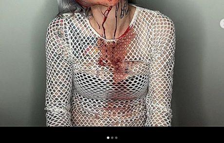 """""""Grozljivo da boli"""": Zaradi tega, kar počne s svojim obrazom, ji sledi že več kot 190.000 ljudi"""