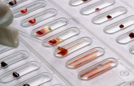 Japonski horoskop: Kaj vaša krvna skupina razkriva o vas in s kom se najbolje ujemate?