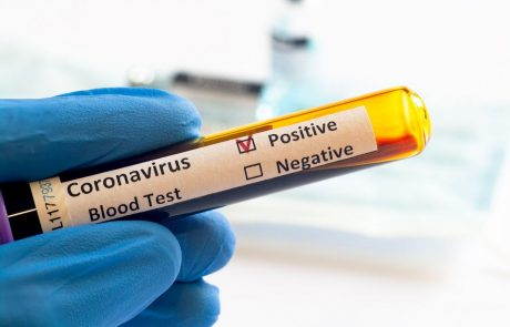 Včeraj ob 10.593 hitrih in PCR testih potrdili 2129 okužb, umrlo 36 covidnih bolnikov