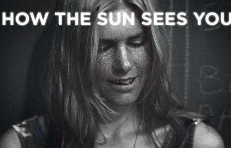 VIDEO: Tako grozljivo je videti vaša koža pod premočnim soncem!