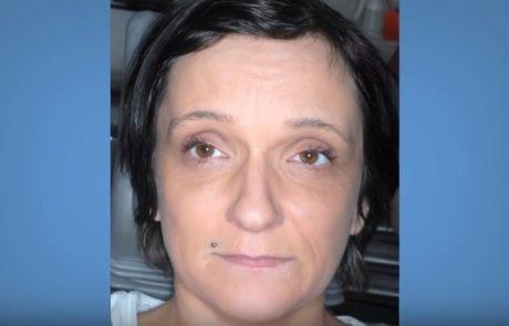 Zube nije oprala 15 godina: Pogledajte, kako danas izgledaju njeni zubi!